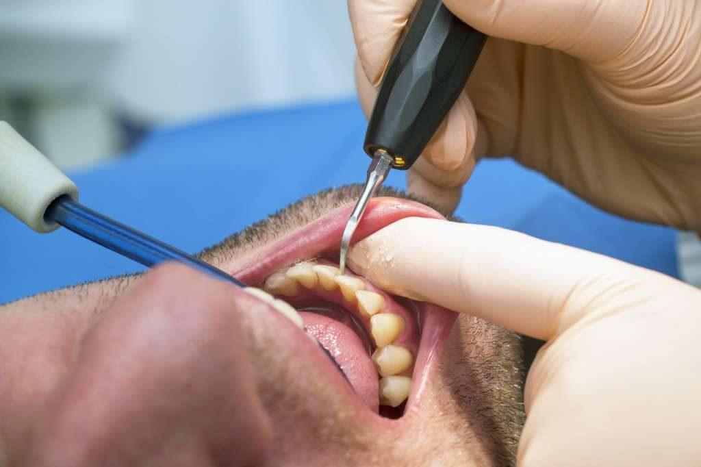 Gum Disease Treatment Clinic near me - Preferred Dental Care, Davie, FL
