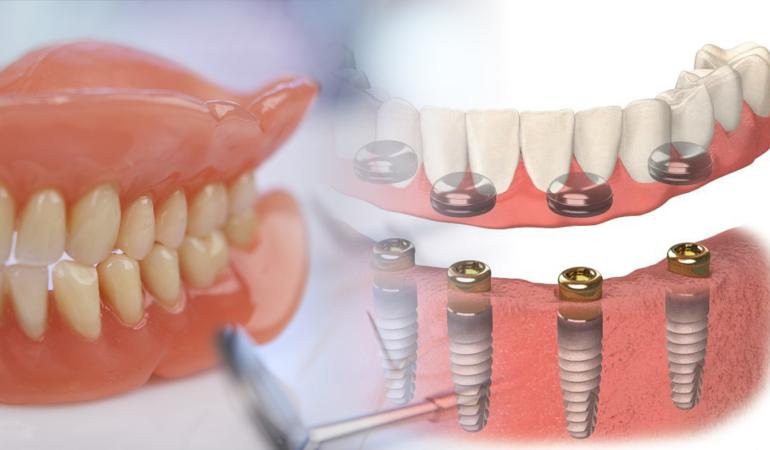 Dentures Near Me >> Dental Clinics Near Me Archives Preferred Dental Care