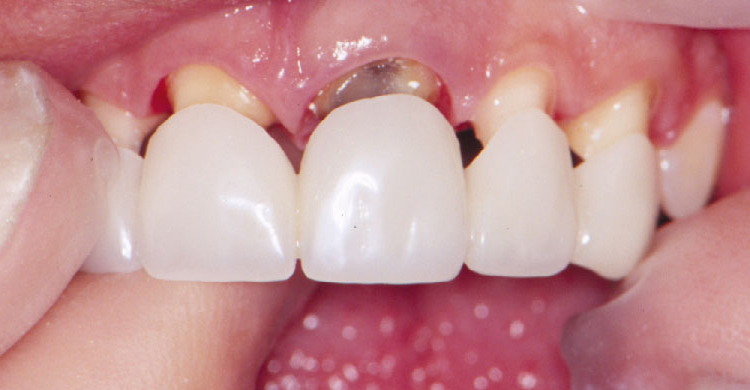 Dental Crowns And Bridges Service Preferred Dental Care Davie Fl